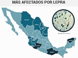 BREVES-lepra mexico-WB