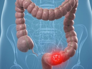 Gene Therapy With The Use Of Radioactive Iodine Would Fight Colon Cancer